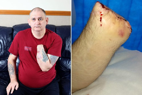 L'incredibile storia di Mark Goddard: si auto-amputa perché non sopporta più il dolore – VIDEO