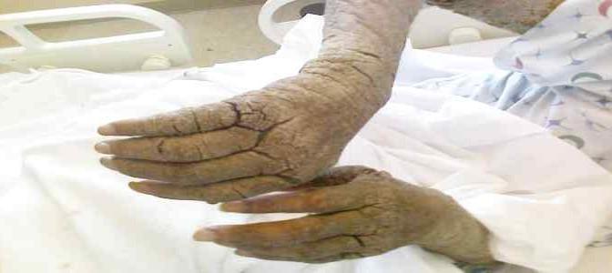 Medici Senza Frontiere scarica 692 coloni: con la Scabbia…