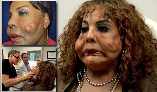 Trans si fa 'cementare' la faccia per sembrare donna