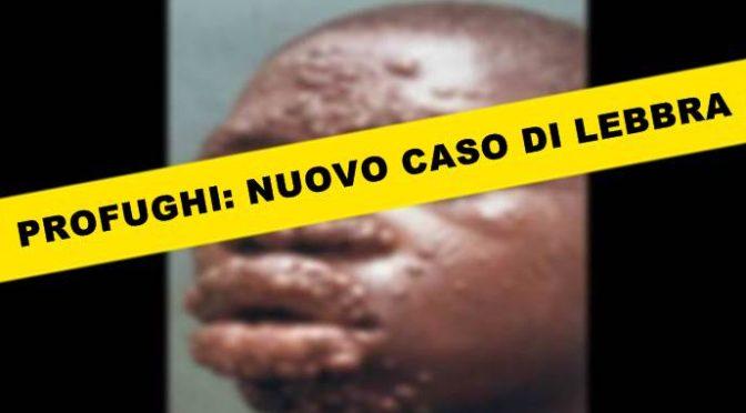 """Lebbra a Savona, Sindaco: """"Profugo non è contagioso"""""""