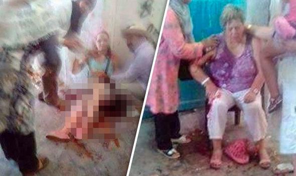 Tunisia: islamico tenta di sgozzare turiste, ferite