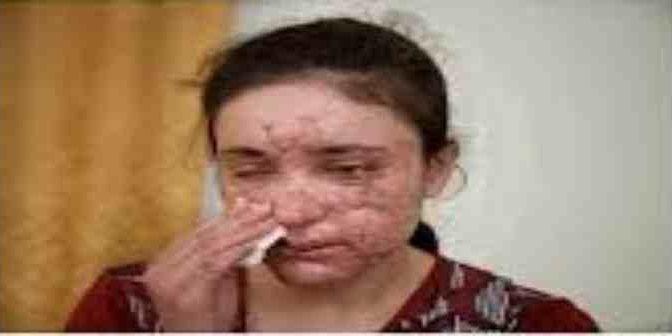 """Tenuta schiava dagli Islamici per 6 mesi: """"Violentata ogni giorno"""" – VIDEO"""