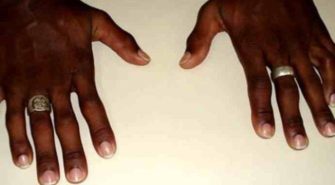 Il migrante 'mutante' con 6 dita: le usava per rubare meglio