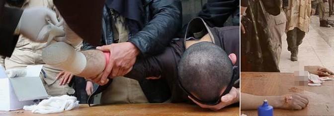 Legge Islamica: ISIS taglia mani a ragazzo – FOTO CHOC