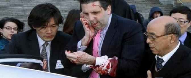 Ambasciatore USA aggredito a rasoiate, ferito – VIDEO – FOTO