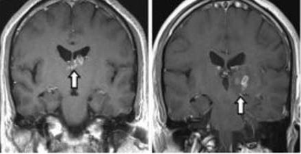 Quel forte mal di testa era causato da un parassita nel cervello – FOTO