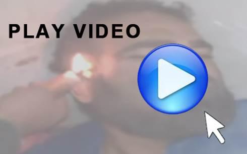 Torture Islamiche: miliziani iracheni gli bruciano il volto – VIDEO CHOC
