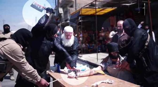 ONDATA DI AMPUTAZIONI ISLAMICHE IN IRAQ – VIDEO