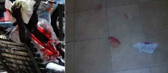 Coltellate tra profughi infetti in hotel: sangue