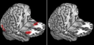 Una spiegazione biologica al buonismo: l'insula anteriore e l'antirazzismo patologico