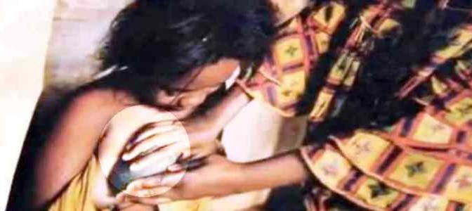 Tolgono seni alle figlie per non provocare maschi africani