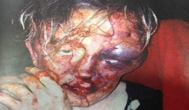 Difende l'amico svenuto, immigrati gli sfondano il cranio a calci