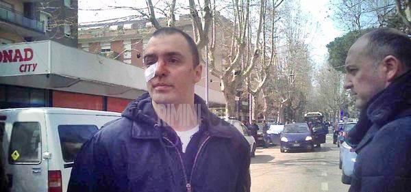 Agguato: trovate le spranghe utilizzate da centro sociale, denunciato sindaco di Rimini