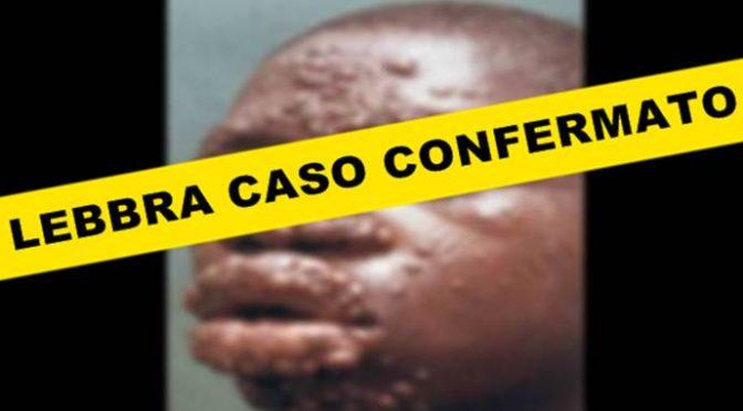 GENOVA: CONFERMATO CASO DI LEBBRA, NIGERIANO ISOLATO