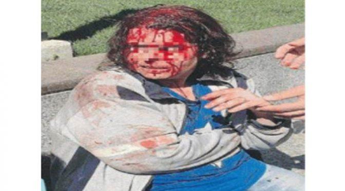 Milano, Italiana massacrata a sangue da marocchino fugge per strada