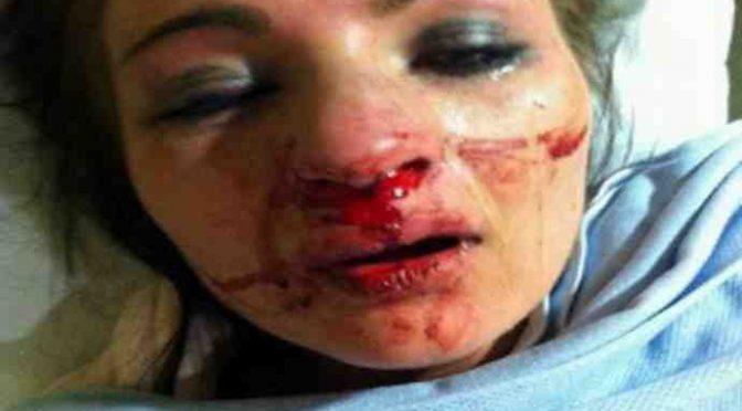 Entra da Mc Donald's e l'inserviente africano la violenta: le spacca il naso