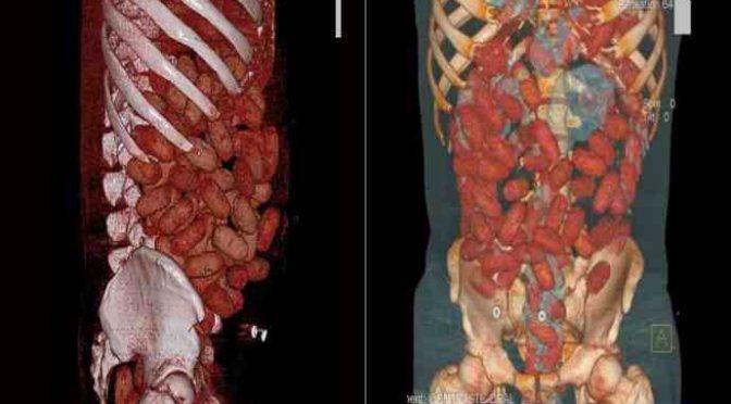 PROFUGO CON 100 OVULI DI DROGA IN PANCIA: 4 GIORNI PER CAGARLI TUTTI