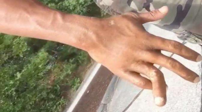 Non lo lasciano spacciare, profugo minorenne spezza le dita a 2 Carabinieri