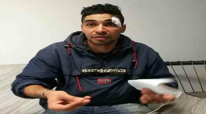"""Marocchino protesta: """"Picchiato solo perché ho rubato"""", presenta denuncia"""