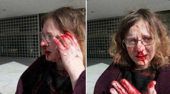 L'avvocato che difende i migranti picchiata dalla folla, polizia lascia fare