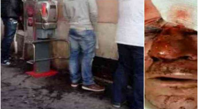 Chiede a migranti di non pisciare per strada, massacrato di botte