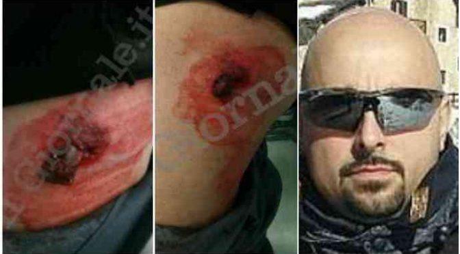 """Il poliziotto ferito a Torino: """"Noi ostaggio dei teppisti antifascisti"""""""