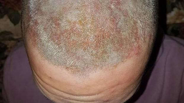 Va da parrucchiera cinese e si ritrova con la testa ustionata – FOTO