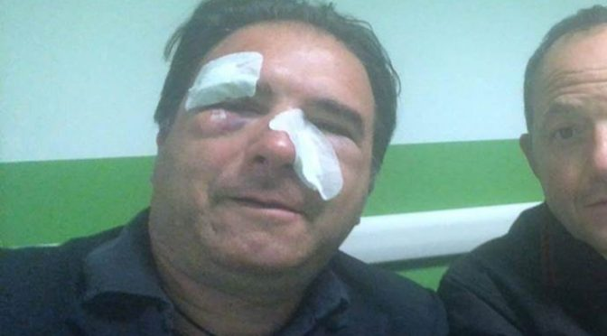 Brutale aggressione sul bus: controllore Atm pestato a sangue – FOTO