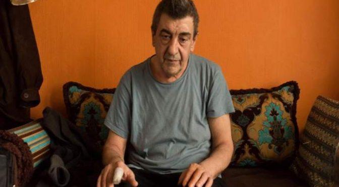 Mohamed mangia il dito a Pietro, 62 anni