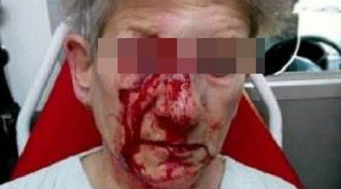 Immigrato pesta a sangue 70enne e le spezza il femore