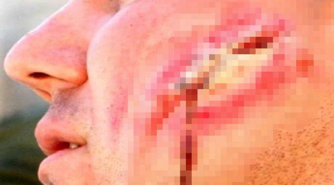 Agente ferito, Nigeriano gli strappa guancia a morsi