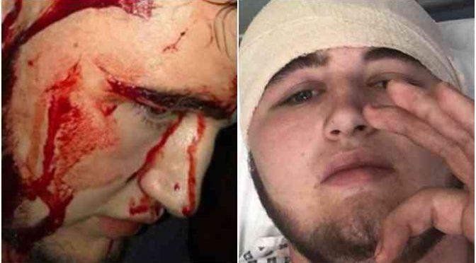 Ragazzino massacrato a mazzate da 5 pakistani: gli spaccano la testa – FOTO