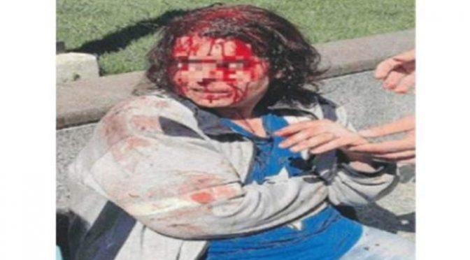 Volontaria rifiuta le avances del profugo: lui le spacca la faccia