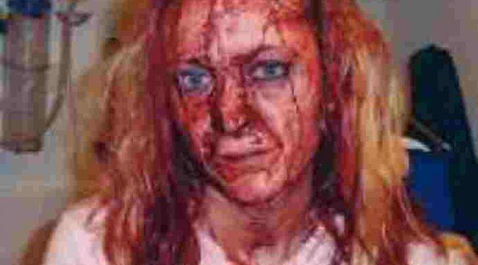 """Così l'ha ridotta il profugo dopo lo stupro: """"Il viso le grondava di sangue"""""""