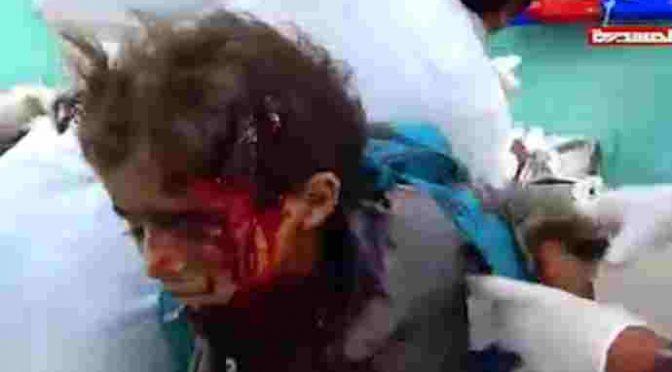 Sauditi bombardano scuolabus: strage di bambini