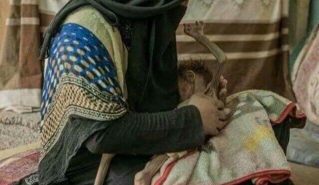 La foto della vergogna: è guerra di sterminio in Yemen