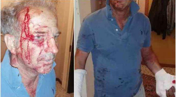 """Poliziotto pestato a sangue dai profughi, Salvini: """"Via dall'Italia"""""""