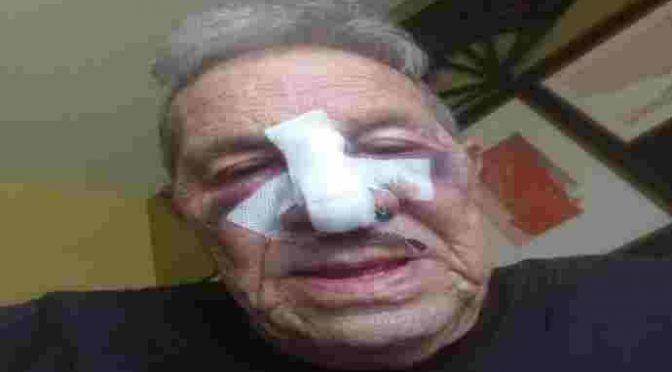Non dà sigaretta a migrante, lui gli spacca la faccia – FOTO