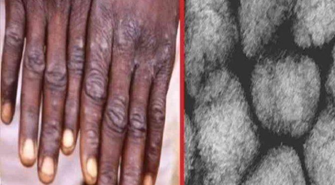 """Nigeriano infetto da Vaiolo delle Scimmie: """"E' la globalizzione"""""""