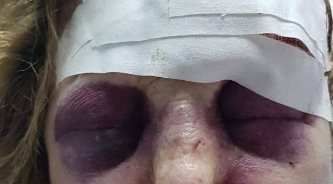 Anziana rifiuta elemosina, massacrata da mendicanti – FOTO CHOC