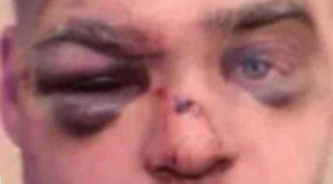 Nuovo 'italiano' prende a testate studente che va a scuola e gli frattura il naso