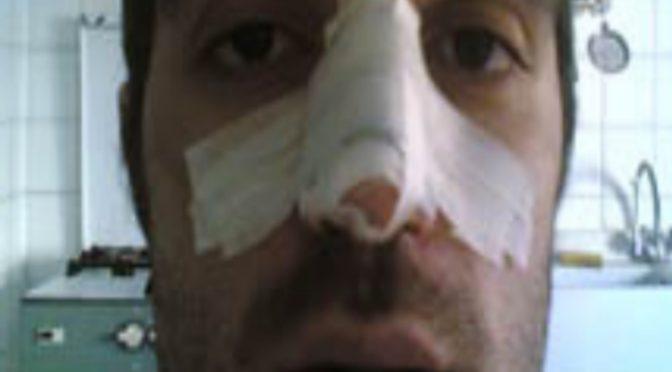 Profugo spacca il naso a poliziotto: calci in faccia mentre a terra