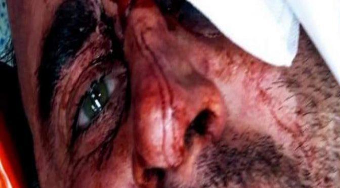 Italiano massacrato di botte da 3 Rom – VIDEO
