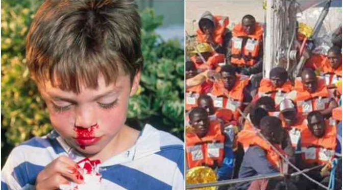 Immigrati africani spaccano faccia a bimbo di 9 anni a Padova