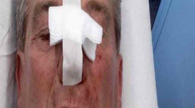 Sindaco Lega pestato a sangue dai Rom: gli spaccano la faccia – VIDEO