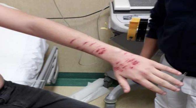 Ventimiglia, branco immigrati sfregia 14enne italiano: lui li atterra a colpi di karate