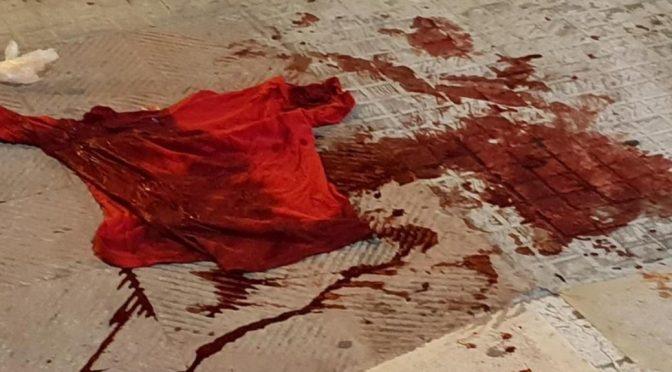 Nega elemosina, italiano massacrato a sassate da nigeriano fuori dal supermercato – FOTO