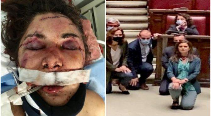 Massacrata da immigrato perché non gliela dà: braccio e mandibola fratturati, denti rotti