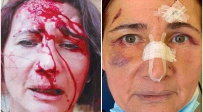 Razzismo: massacrata a sassate da africana alla stazione, la trovano sanguinante