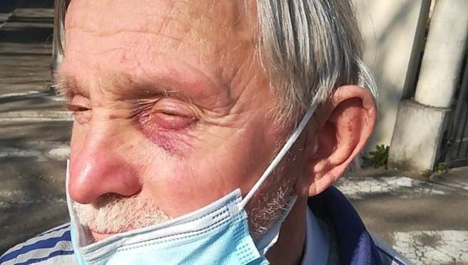 Dà un passaggio in auto a tre estranei: anziano picchiato e rapinato